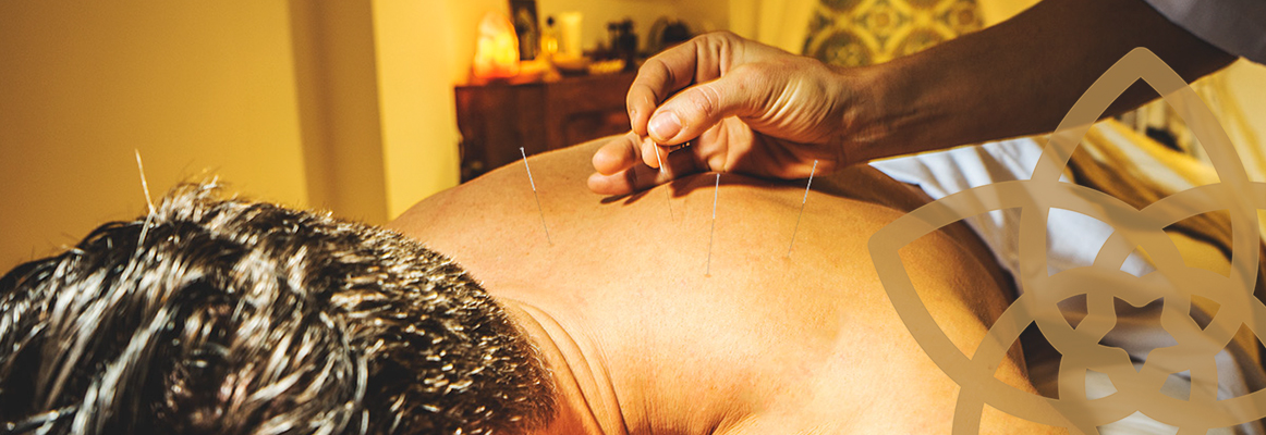 img_acupuntura